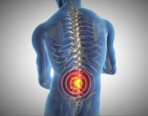back-pain-target
